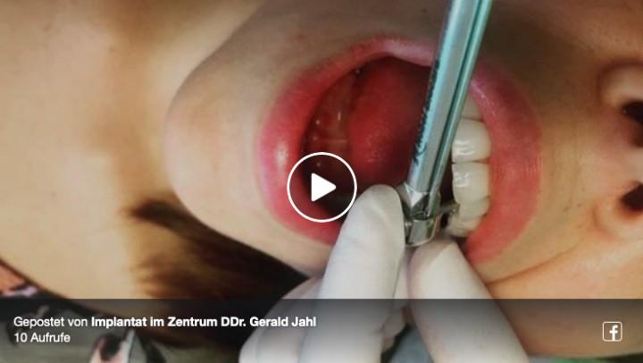 Video Implantat im Zentrum