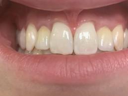 All-on-4 - Schöne Zähne