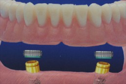 Feste Zähne an einem Tag